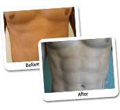 Vaser Liposculpture Before and After Photos (1)