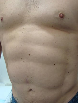 Vaser Liposculpture After Photos (4)