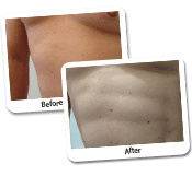 Vaser Liposculpture Before & After Photos (4)
