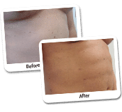 Vaser Liposculpture Before & After Photos (5)