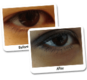 Eyelid Surgery Before & After Photos (14)