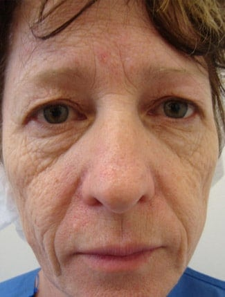 Face Laser Resurfacing before