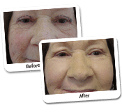 Laser Blepharoplasty Surgery Before & After Photos (case- 3-2)
