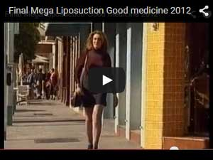 Sydney Liposuction Video 5