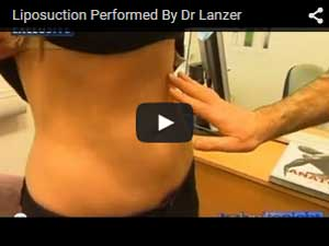 Sydney Liposuction Video 8